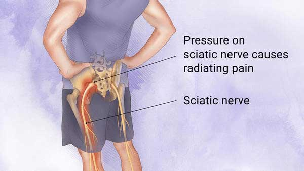 Chiropractic can sometimes help sciatic pain