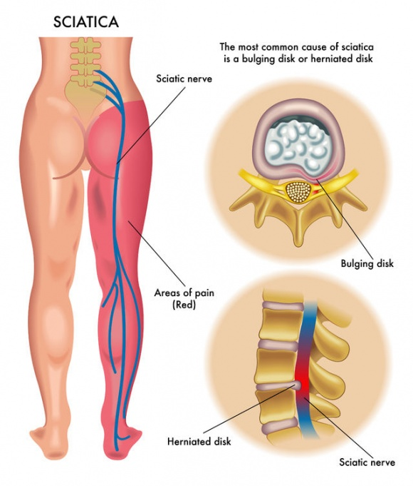 Chiropractic has helped many cases of sciatica