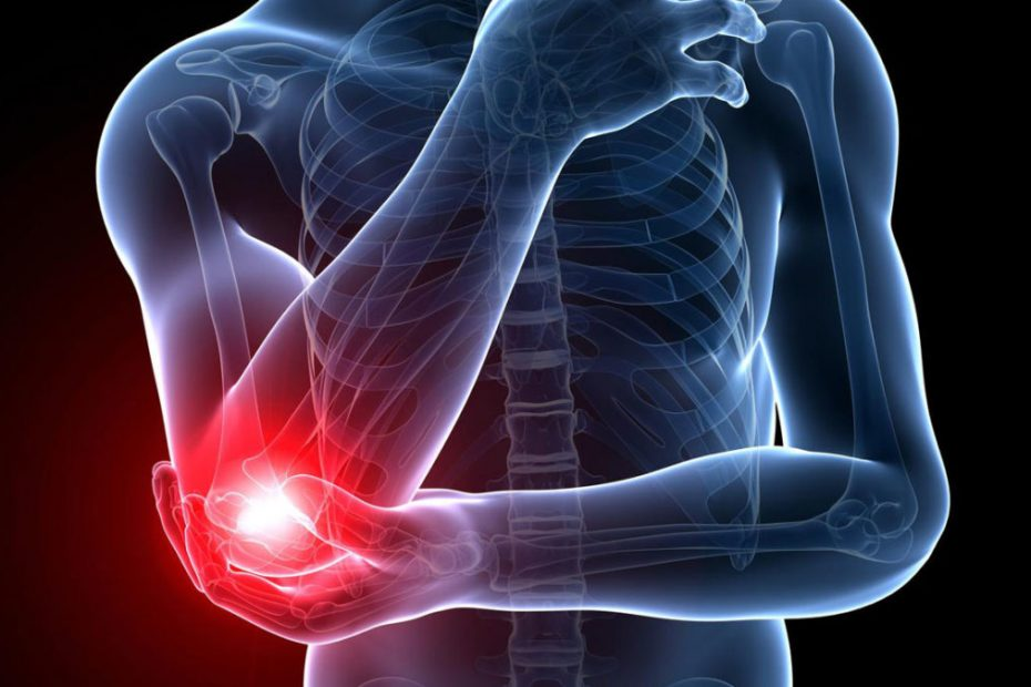 golfers elbow is a repetitive strain injury
